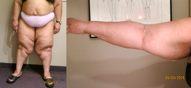 Lipedema Treatment San Diego - Lymphatic Therapy Services